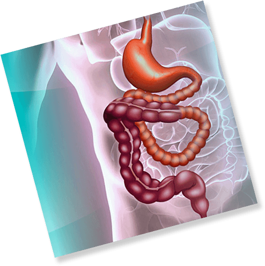 intestines - Medical Conditions